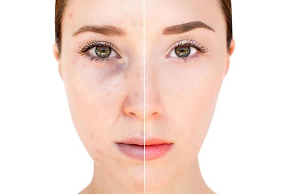eliminación de cicatrices y verrugas