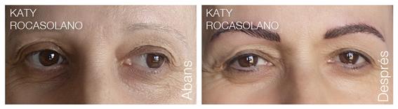 Celles abans i després de la dermopigmentació.