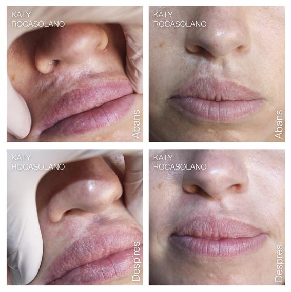 Cicatriu labial abans i després dermopigmentació