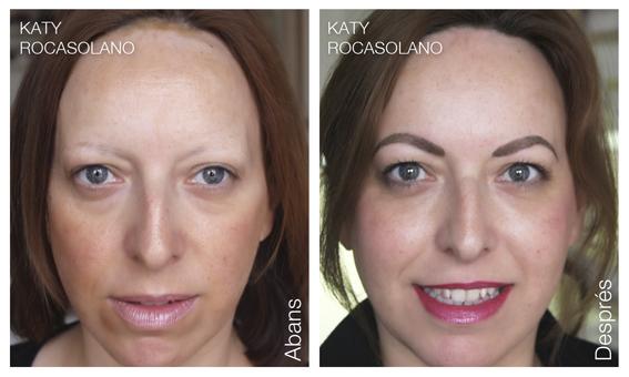 Lupus eritematós abans i després dermopigmentació.