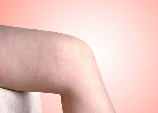 lesiones vasculares